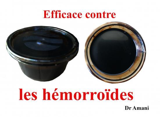 Hemorroides 1